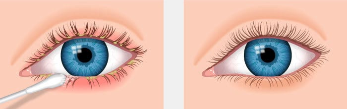 Blepharitis Information About Blepharitis Eyelid Inflammation